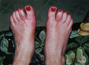 bunions after