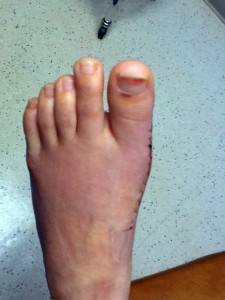 This is a photo of a patient's foot that after surgery to remove bunions.